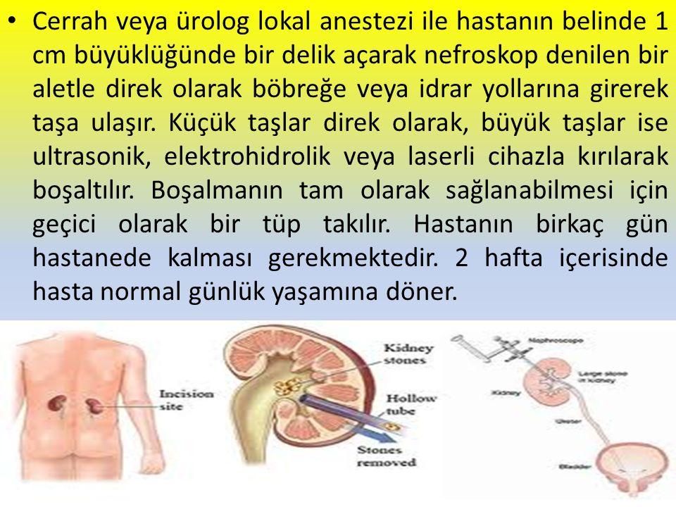 Cerrah veya ürolog lokal anestezi ile hastanın belinde 1 cm büyüklüğünde bir delik açarak nefroskop denilen bir aletle direk olarak böbreğe veya idrar