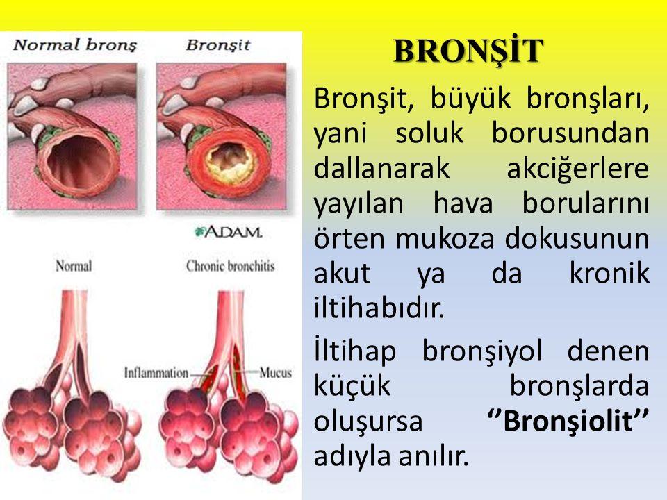 BRONŞİT Bronşit, büyük bronşları, yani soluk borusundan dallanarak akciğerlere yayılan hava borularını örten mukoza dokusunun akut ya da kronik iltiha
