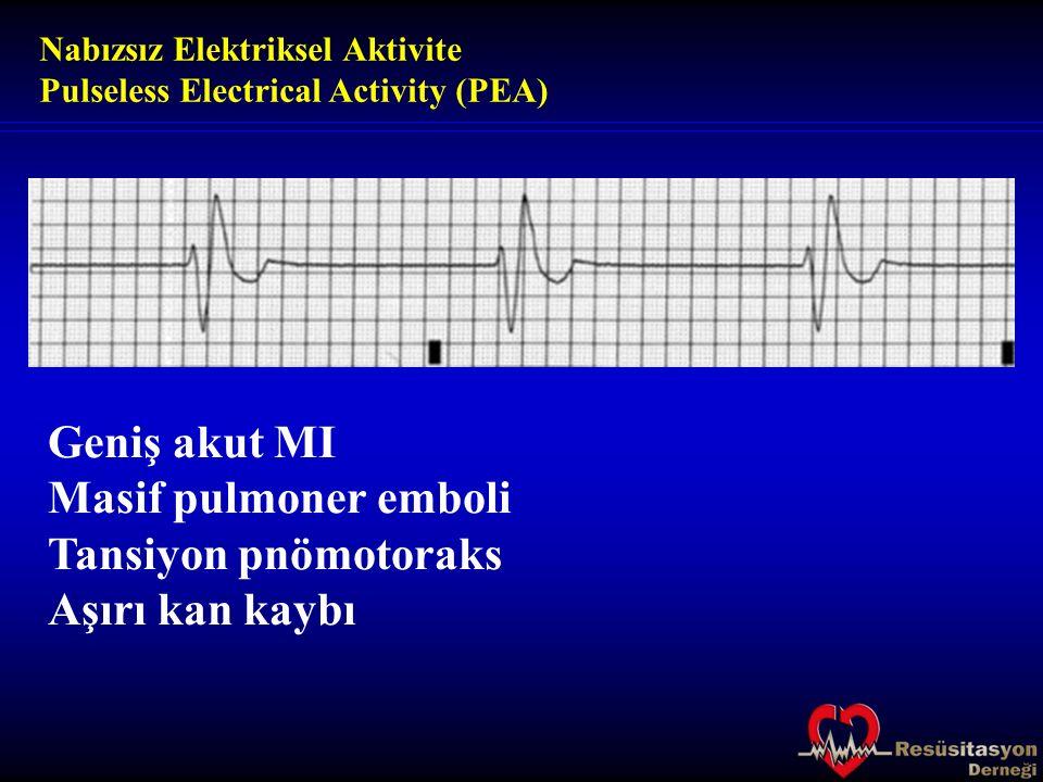 Geniş akut MI Masif pulmoner emboli Tansiyon pnömotoraks Aşırı kan kaybı Nabızsız Elektriksel Aktivite Pulseless Electrical Activity (PEA)