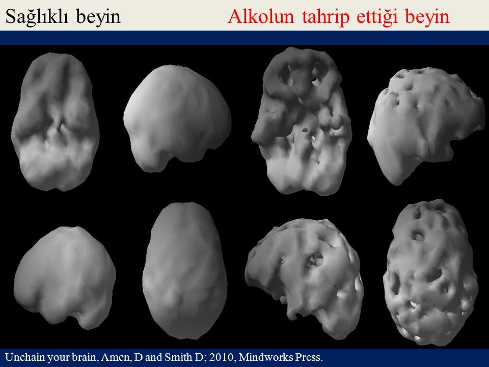 Sağlıklı beyinAlkolun tahrip ettiği beyin Unchain your brain, Amen, D and Smith D; 2010, Mindworks Press.