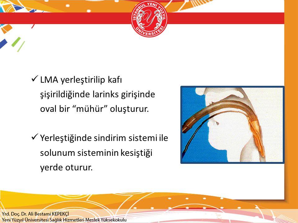 """LMA yerleştirilip kafı şişirildiğinde larinks girişinde oval bir """"mühür"""" oluşturur. Yerleştiğinde sindirim sistemi ile solunum sisteminin kesiştiği ye"""