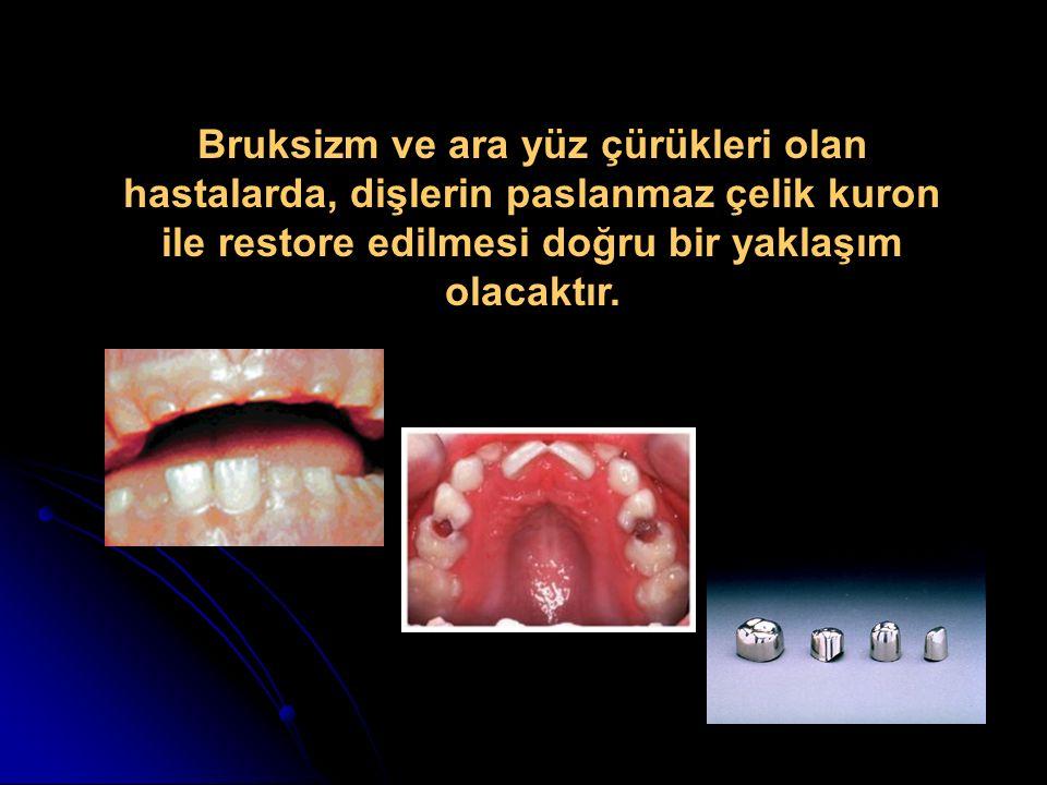 Bruksizm ve ara yüz çürükleri olan hastalarda, dişlerin paslanmaz çelik kuron ile restore edilmesi doğru bir yaklaşım olacaktır.