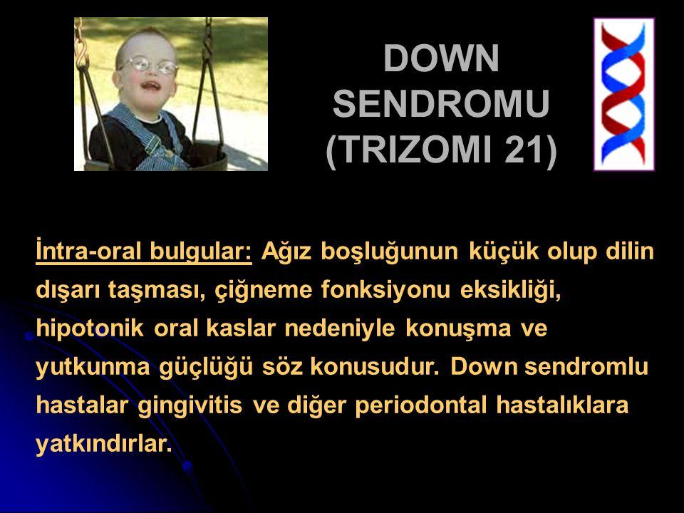 DOWN SENDROMU (TRIZOMI 21) İntra-oral bulgular: Ağız boşluğunun küçük olup dilin dışarı taşması, çiğneme fonksiyonu eksikliği, hipotonik oral kaslar n
