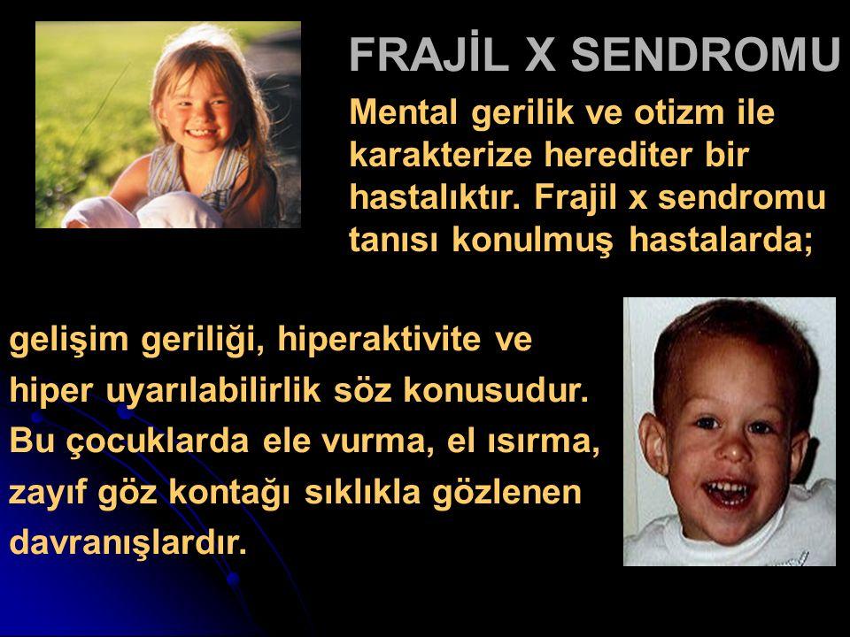 FRAJİL X SENDROMU gelişim geriliği, hiperaktivite ve hiper uyarılabilirlik söz konusudur. Bu çocuklarda ele vurma, el ısırma, zayıf göz kontağı sıklık