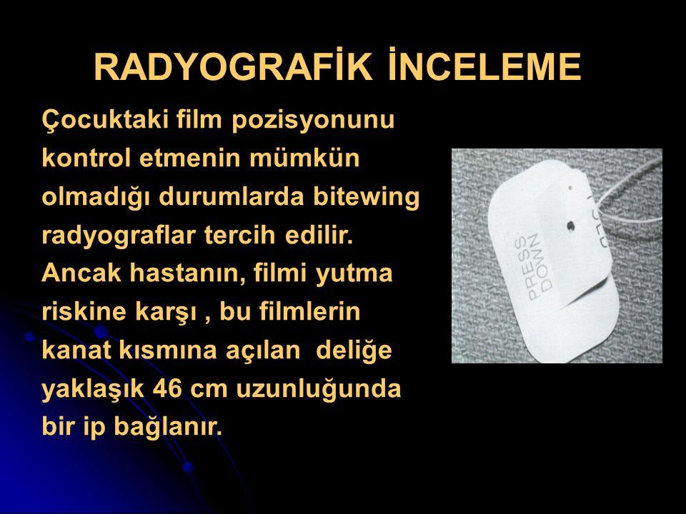 RADYOGRAFİK İNCELEME Çocuktaki film pozisyonunu kontrol etmenin mümkün olmadığı durumlarda bitewing radyograflar tercih edilir. Ancak hastanın, filmi