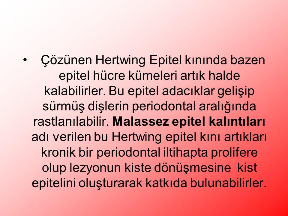 Çözünen Hertwing Epitel kınında bazen epitel hücre kümeleri artık halde kalabilirler.