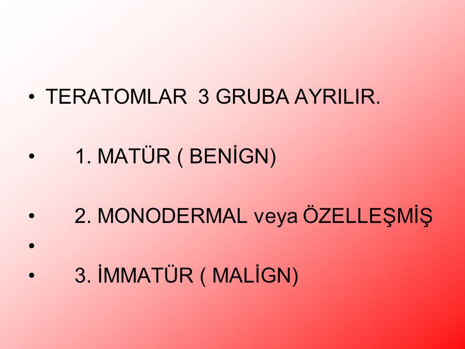 TERATOMLAR 3 GRUBA AYRILIR. 1. MATÜR ( BENİGN) 2. MONODERMAL veya ÖZELLEŞMİŞ 3. İMMATÜR ( MALİGN)