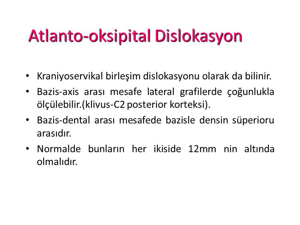 Kraniyoservikal birleşim dislokasyonu olarak da bilinir.