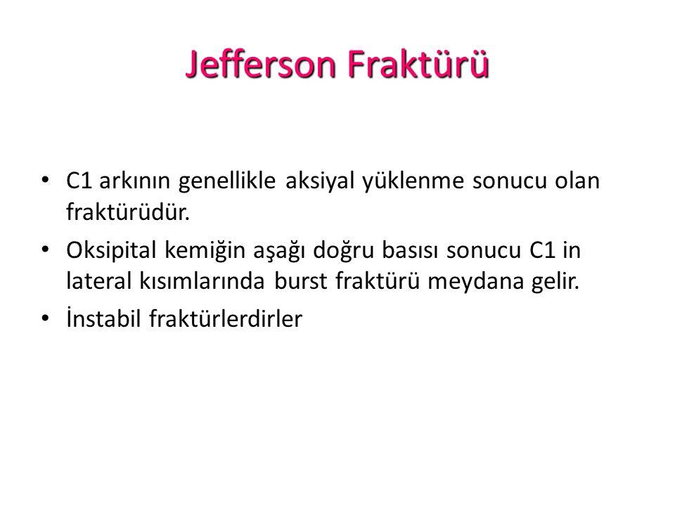 Jefferson Fraktürü C1 arkının genellikle aksiyal yüklenme sonucu olan fraktürüdür.