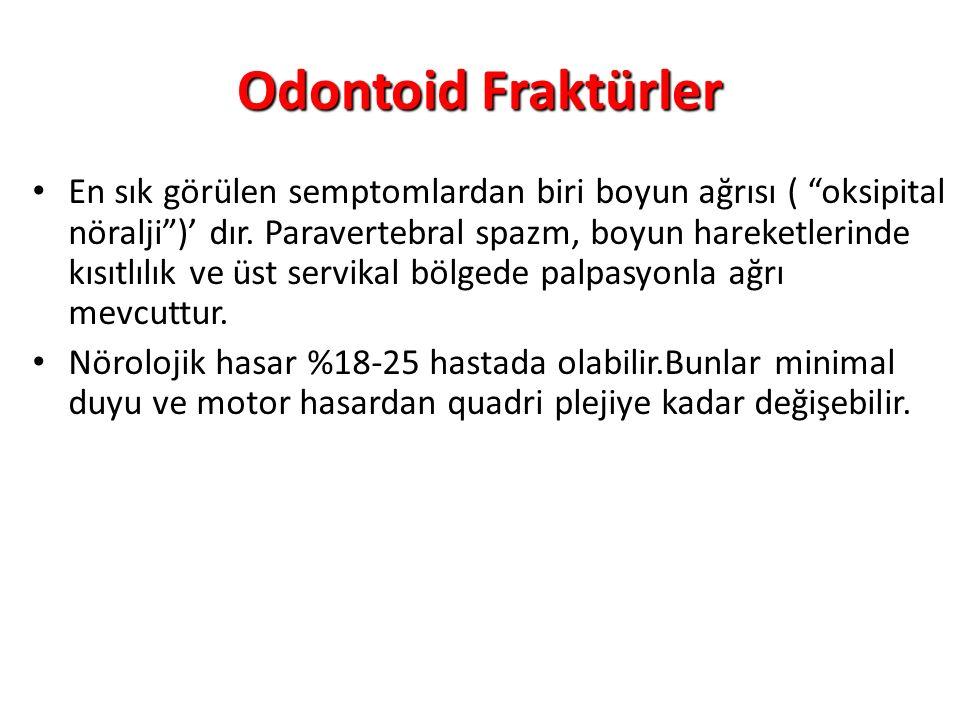 Odontoid Fraktürler En sık görülen semptomlardan biri boyun ağrısı ( oksipital nöralji )' dır.