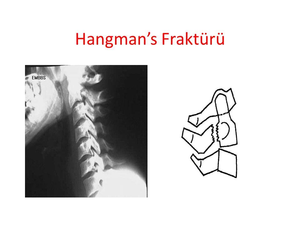 Hangman's Fraktürü