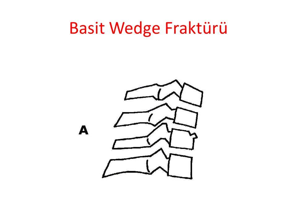 Basit Wedge Fraktürü
