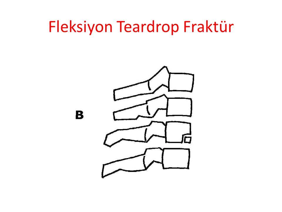 Fleksiyon Teardrop Fraktür