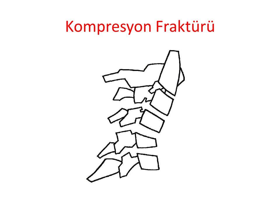 Kompresyon Fraktürü