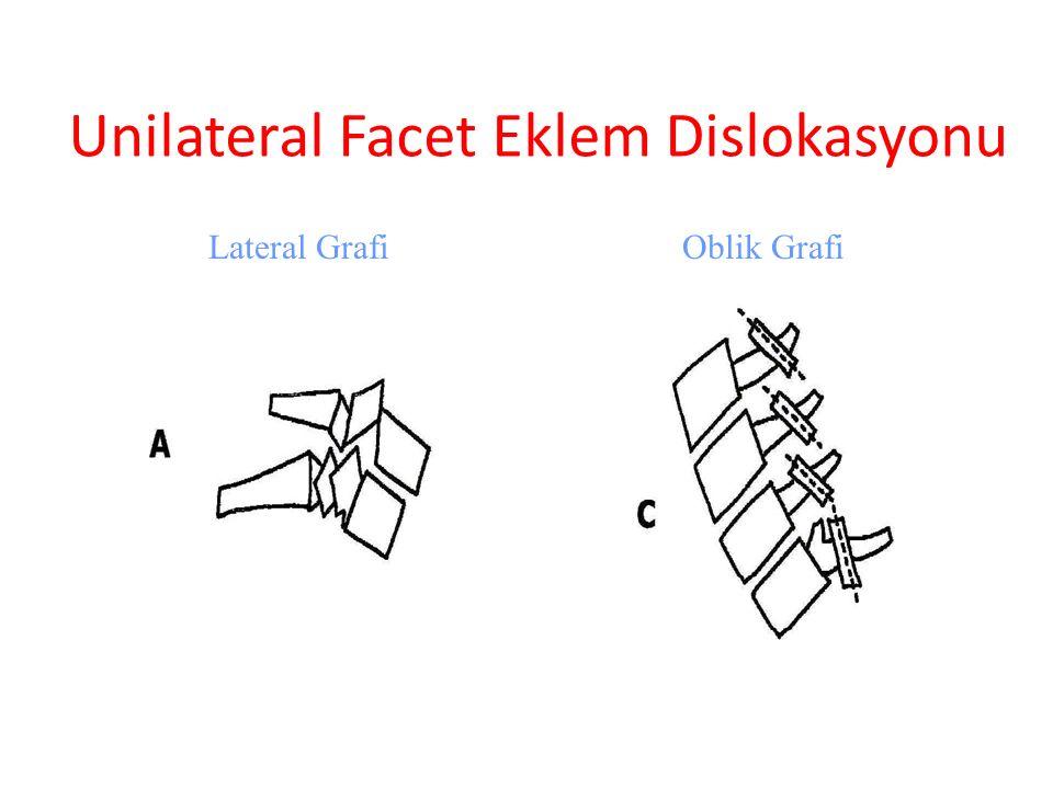 Unilateral Facet Eklem Dislokasyonu Lateral GrafiOblik Grafi