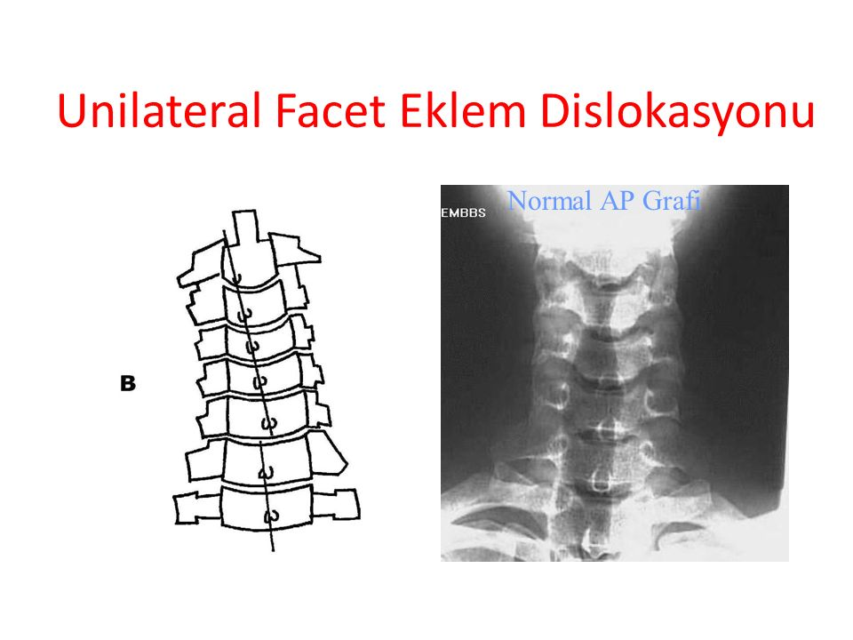 Unilateral Facet Eklem Dislokasyonu Normal AP Grafi