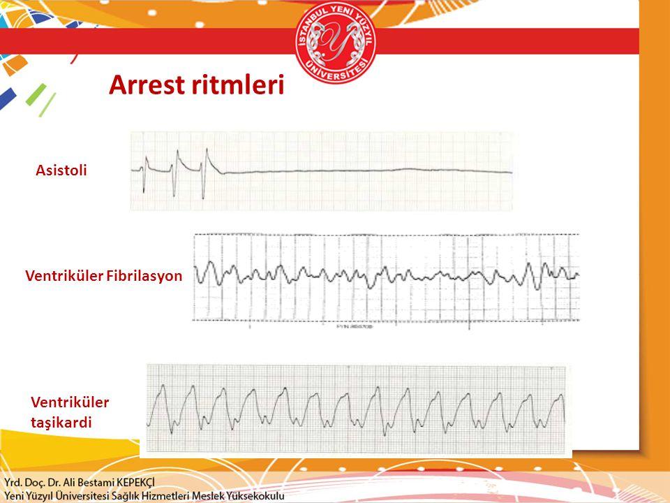 Arrest ritmleri Asistoli Ventriküler Fibrilasyon Ventriküler taşikardi