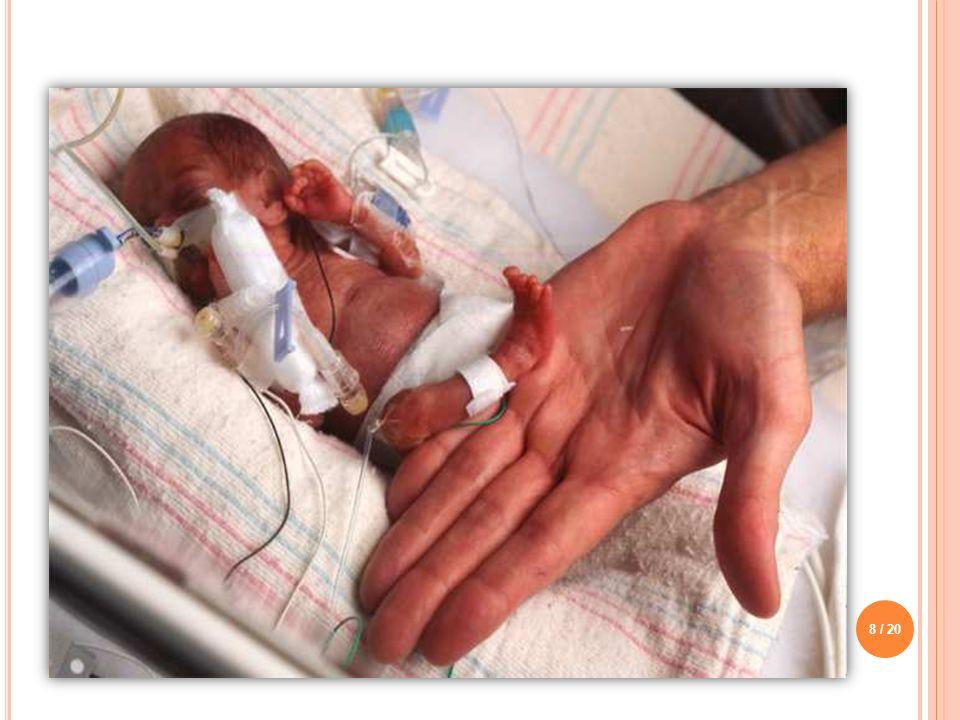 NEDENLERİ o Plesanta yetersizliği, malformasyonalar, vasküler bozukluklar o Annenin akut-kronik hastalıkları o Ağır işte çalışma o Gebelik bakım ve beslenme yetersizliği o Sigara, alkol, ilaç ve uyuşturucu kullanma alışkanlığı o Sosyo-ekonomik etmenler o Gebelikte geçirilen enfeksiyon hastalıkları o Annenin yaşça çok küçük veya ileri yaşta olması 9 / 20