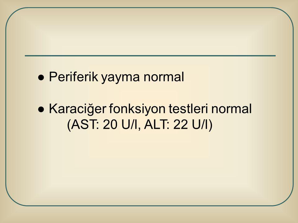 ● Periferik yayma normal ● Karaciğer fonksiyon testleri normal (AST: 20 U/l, ALT: 22 U/l)