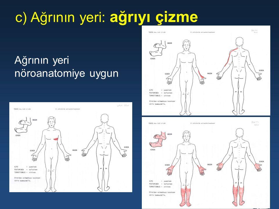 c) Ağrının yeri: ağrıyı çizme Ağrının yeri nöroanatomiye uygun