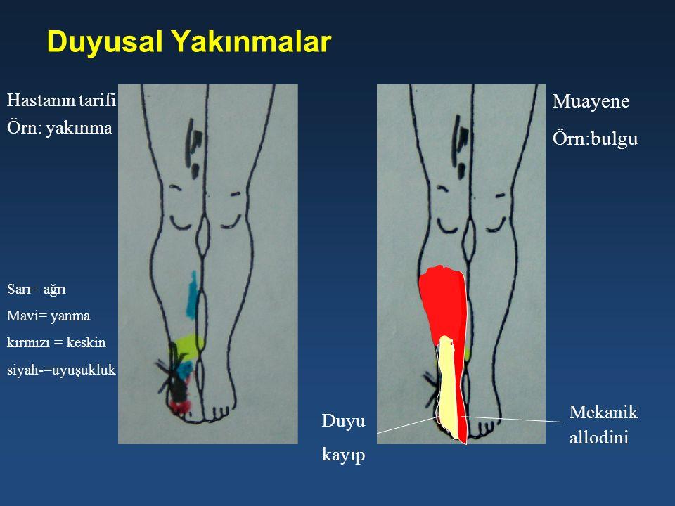 Duyusal Yakınmalar Hastanın tarifi Örn: yakınma Muayene Örn:bulgu Mekanik allodini Duyu kayıp Sarı= ağrı Mavi= yanma kırmızı = keskin siyah-=uyuşukluk