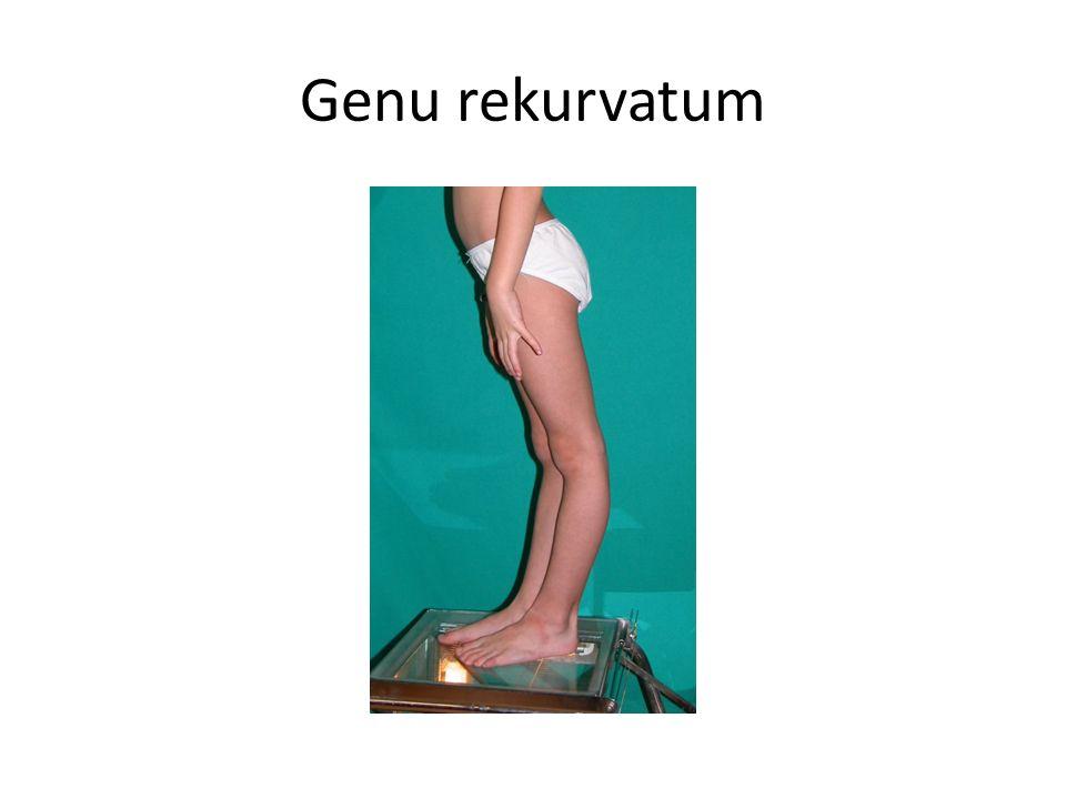 Genu rekurvatum