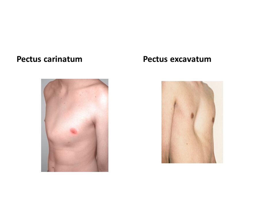 Pectus carinatumPectus excavatum