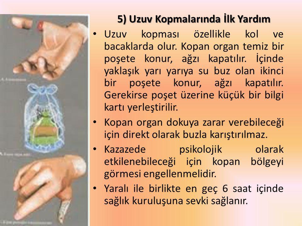 5) Uzuv Kopmalarında İlk Yardım Uzuv kopması özellikle kol ve bacaklarda olur. Kopan organ temiz bir poşete konur, ağzı kapatılır. İçinde yaklaşık yar