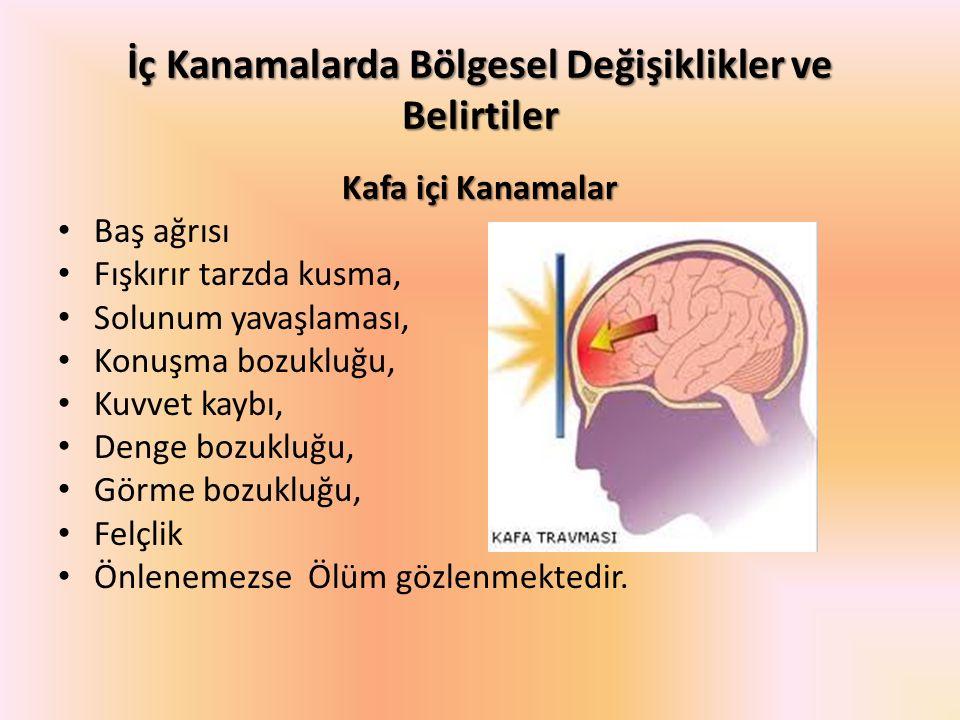 İç Kanamalarda Bölgesel Değişiklikler ve Belirtiler Kafa içi Kanamalar Baş ağrısı Fışkırır tarzda kusma, Solunum yavaşlaması, Konuşma bozukluğu, Kuvve