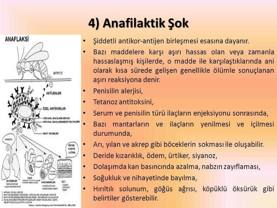 4) Anafilaktik Şok Şiddetli antikor-antijen birleşmesi esasına dayanır. Bazı maddelere karşı aşırı hassas olan veya zamanla hassaslaşmış kişilerde, o