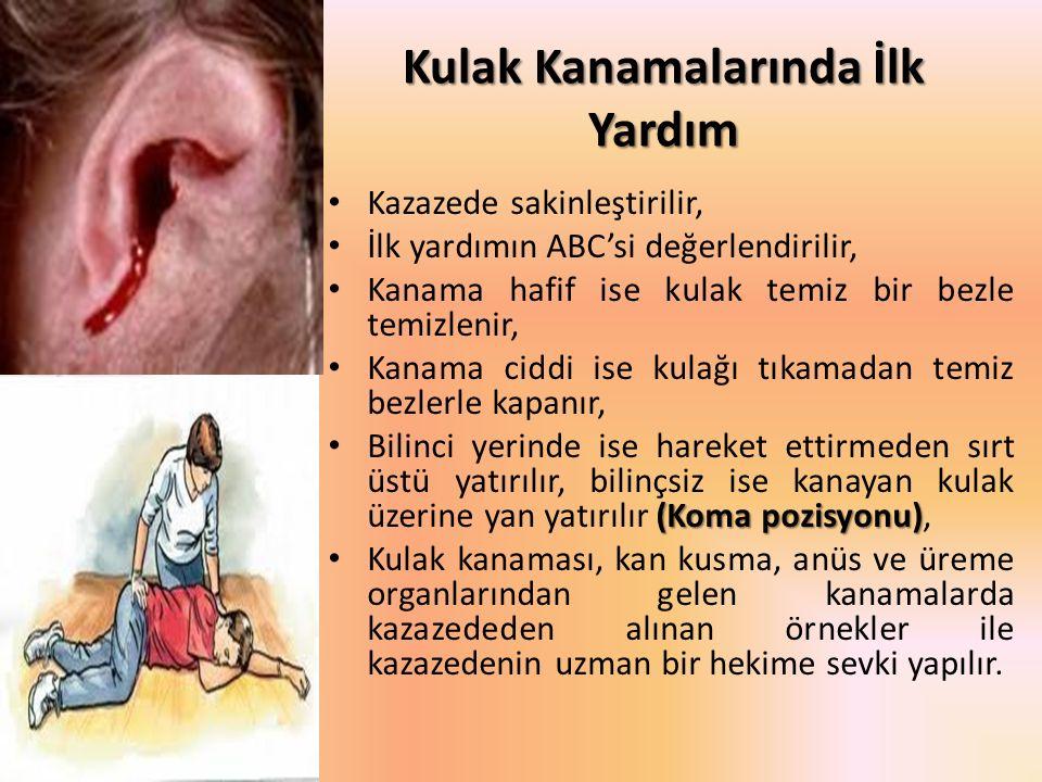 Kulak Kanamalarında İlk Yardım Kazazede sakinleştirilir, İlk yardımın ABC'si değerlendirilir, Kanama hafif ise kulak temiz bir bezle temizlenir, Kanam