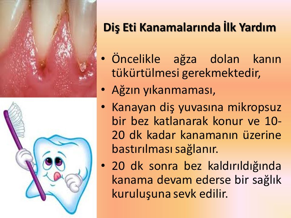 Diş Eti Kanamalarında İlk Yardım Öncelikle ağza dolan kanın tükürtülmesi gerekmektedir, Ağzın yıkanmaması, Kanayan diş yuvasına mikropsuz bir bez katl