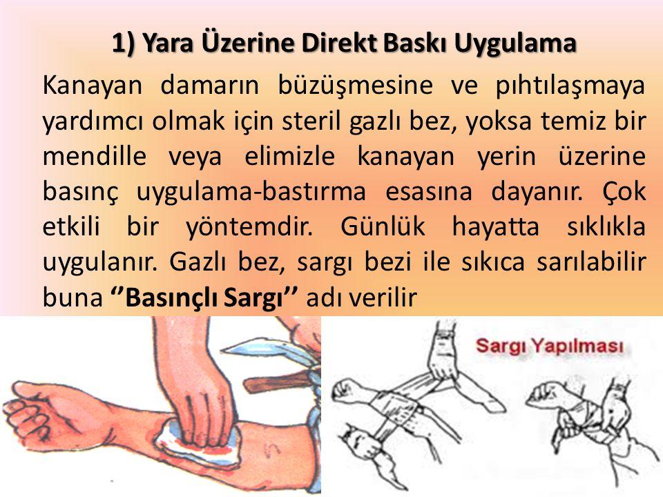 1) Yara Üzerine Direkt Baskı Uygulama Kanayan damarın büzüşmesine ve pıhtılaşmaya yardımcı olmak için steril gazlı bez, yoksa temiz bir mendille veya