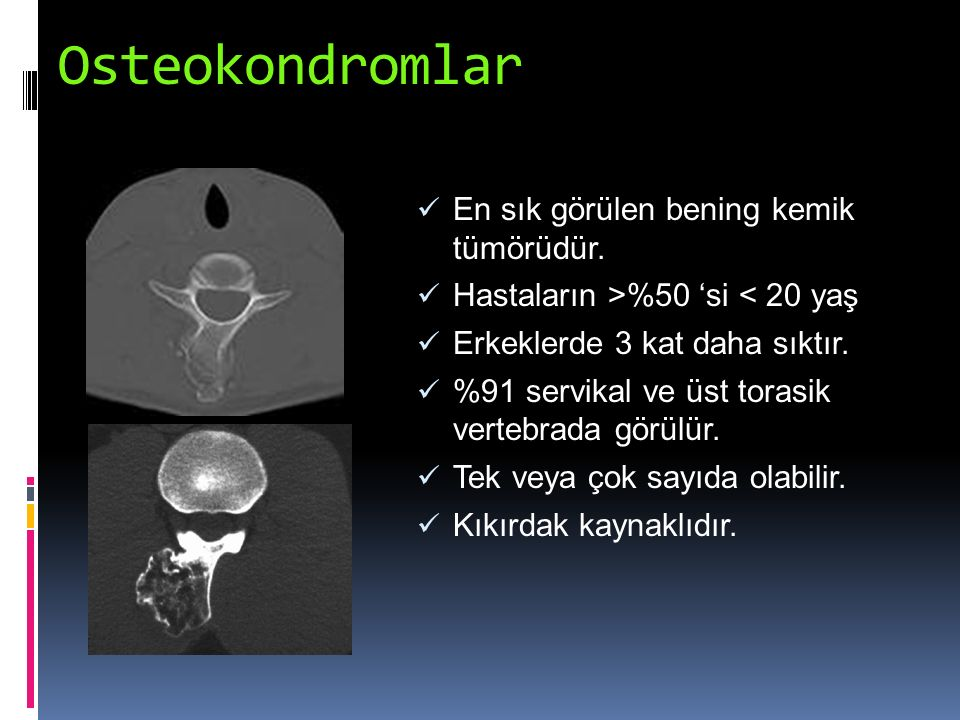 Osteokondromlar En sık görülen bening kemik tümörüdür. Hastaların >%50 'si < 20 yaş Erkeklerde 3 kat daha sıktır. %91 servikal ve üst torasik vertebra