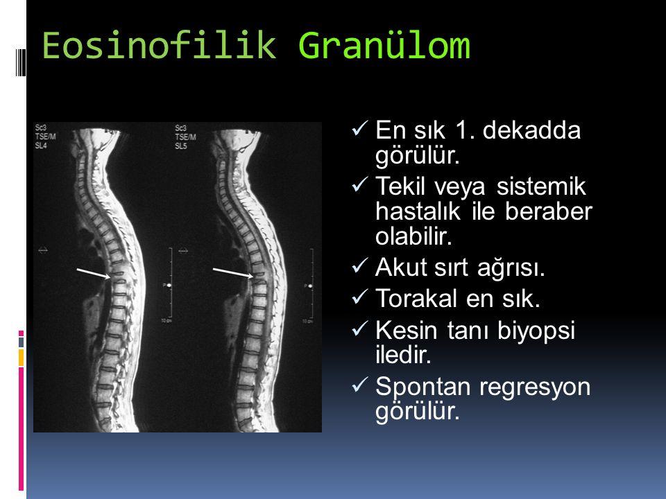 Eosinofilik Granülom En sık 1. dekadda görülür. Tekil veya sistemik hastalık ile beraber olabilir. Akut sırt ağrısı. Torakal en sık. Kesin tanı biyops