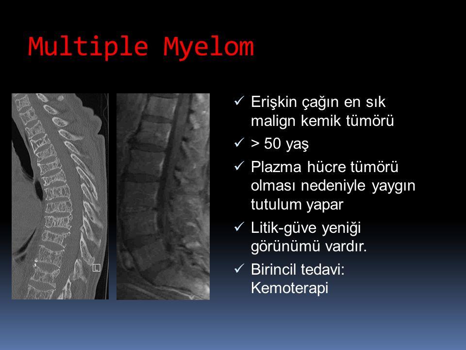 Multiple Myelom Erişkin çağın en sık malign kemik tümörü > 50 yaş Plazma hücre tümörü olması nedeniyle yaygın tutulum yapar Litik-güve yeniği görünümü