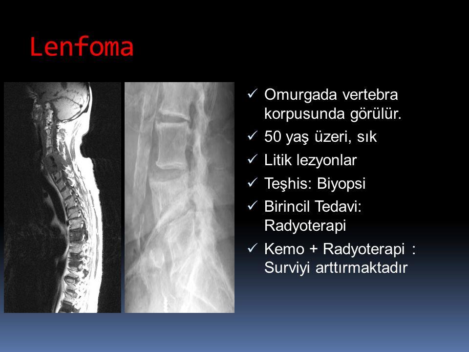 Lenfoma Omurgada vertebra korpusunda görülür. 50 yaş üzeri, sık Litik lezyonlar Teşhis: Biyopsi Birincil Tedavi: Radyoterapi Kemo + Radyoterapi : Surv