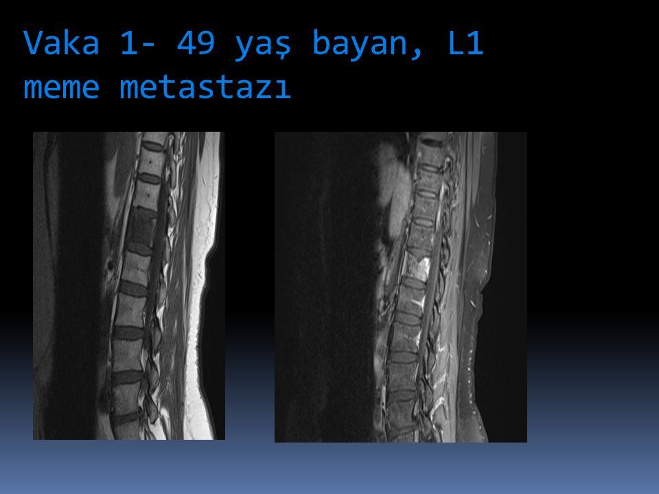 Vaka 1- 49 yaş bayan, L1 meme metastazı