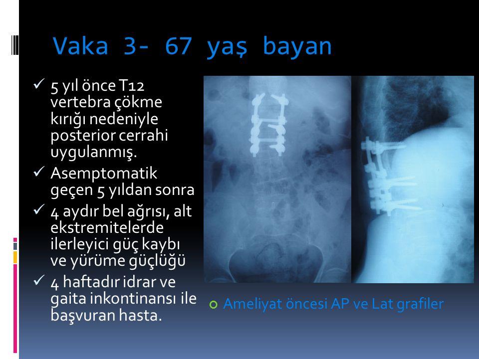 Vaka 3- 67 yaş bayan 5 yıl önce T12 vertebra çökme kırığı nedeniyle posterior cerrahi uygulanmış. Asemptomatik geçen 5 yıldan sonra 4 aydır bel ağrısı