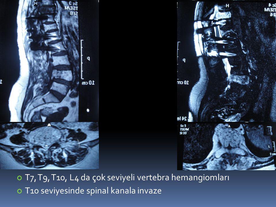 T7, T9, T10, L4 da çok seviyeli vertebra hemangiomları T10 seviyesinde spinal kanala invaze