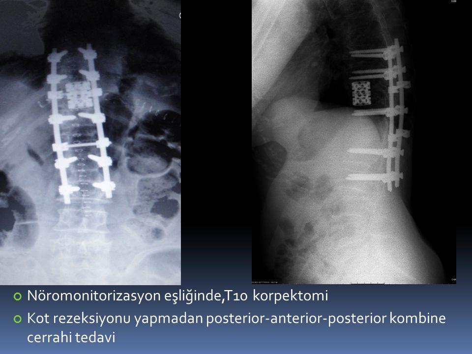 Nöromonitorizasyon eşliğinde,T10 korpektomi Kot rezeksiyonu yapmadan posterior-anterior-posterior kombine cerrahi tedavi