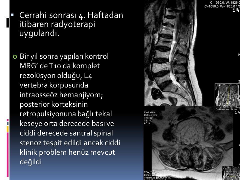  Cerrahi sonrası 4. Haftadan itibaren radyoterapi uygulandı. Bir yıl sonra yapılan kontrol MRG' de T10 da komplet rezolüsyon olduğu, L4 vertebra korp