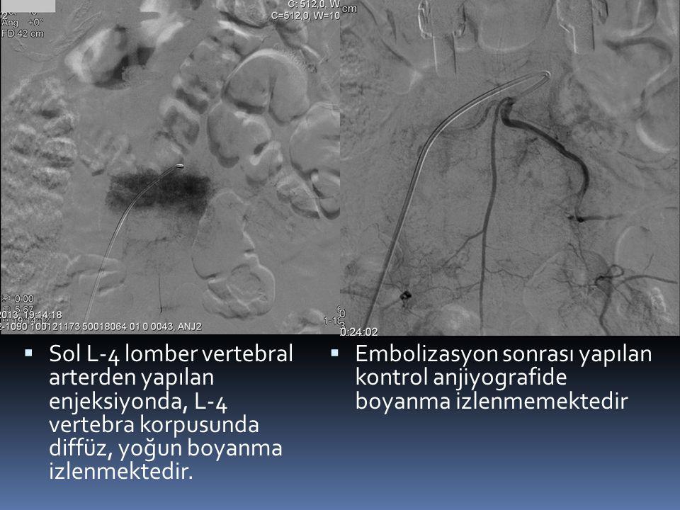  Sol L-4 lomber vertebral arterden yapılan enjeksiyonda, L-4 vertebra korpusunda diffüz, yoğun boyanma izlenmektedir.  Embolizasyon sonrası yapılan