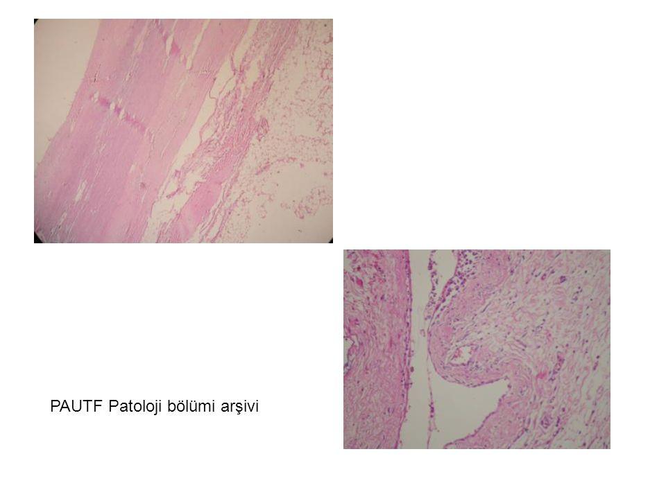PAUTF Patoloji bölümü arşivi