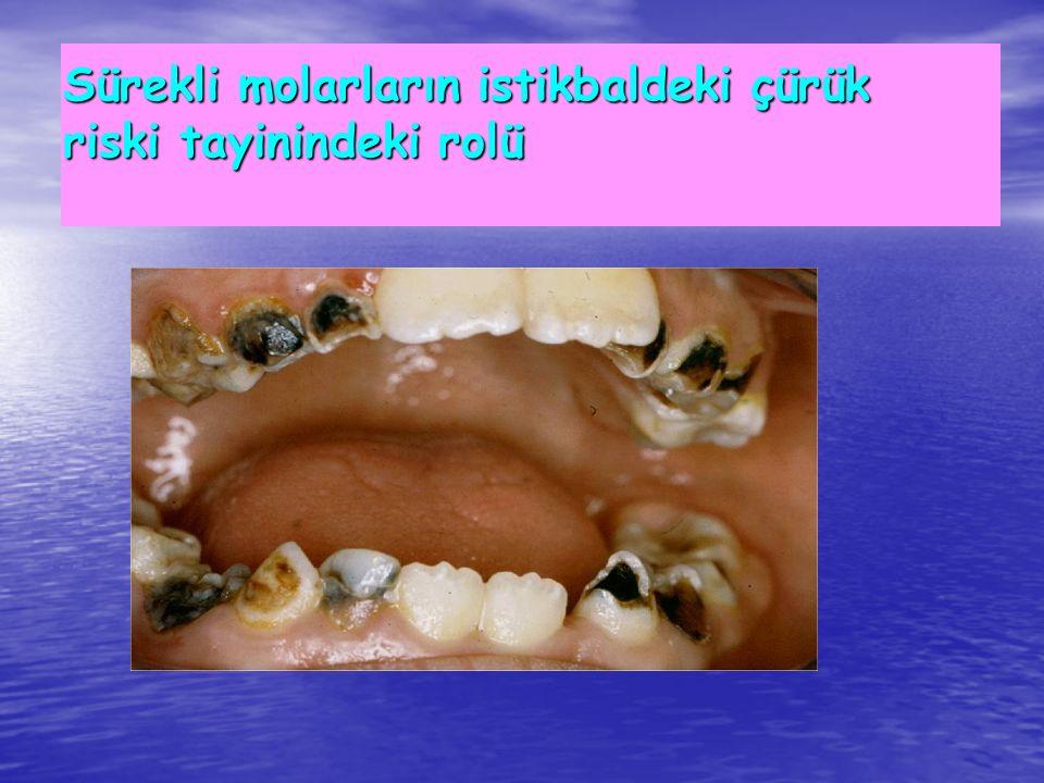 Sürekli molarların istikbaldeki çürük riski tayinindeki rolü