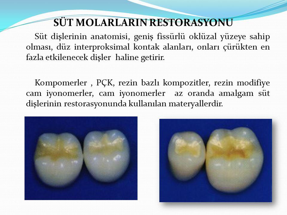 SÜT MOLARLARIN RESTORASYONU Süt dişlerinin anatomisi, geniş fissürlü oklüzal yüzeye sahip olması, düz interproksimal kontak alanları, onları çürükten