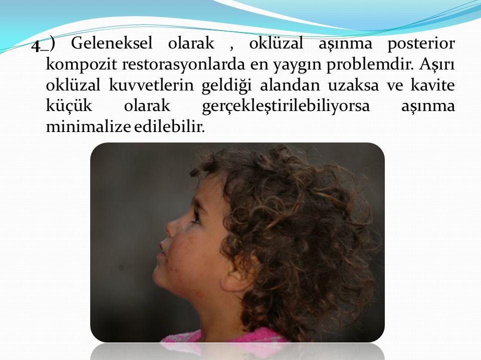 4_) Geleneksel olarak, oklüzal aşınma posterior kompozit restorasyonlarda en yaygın problemdir. Aşırı oklüzal kuvvetlerin geldiği alandan uzaksa ve ka