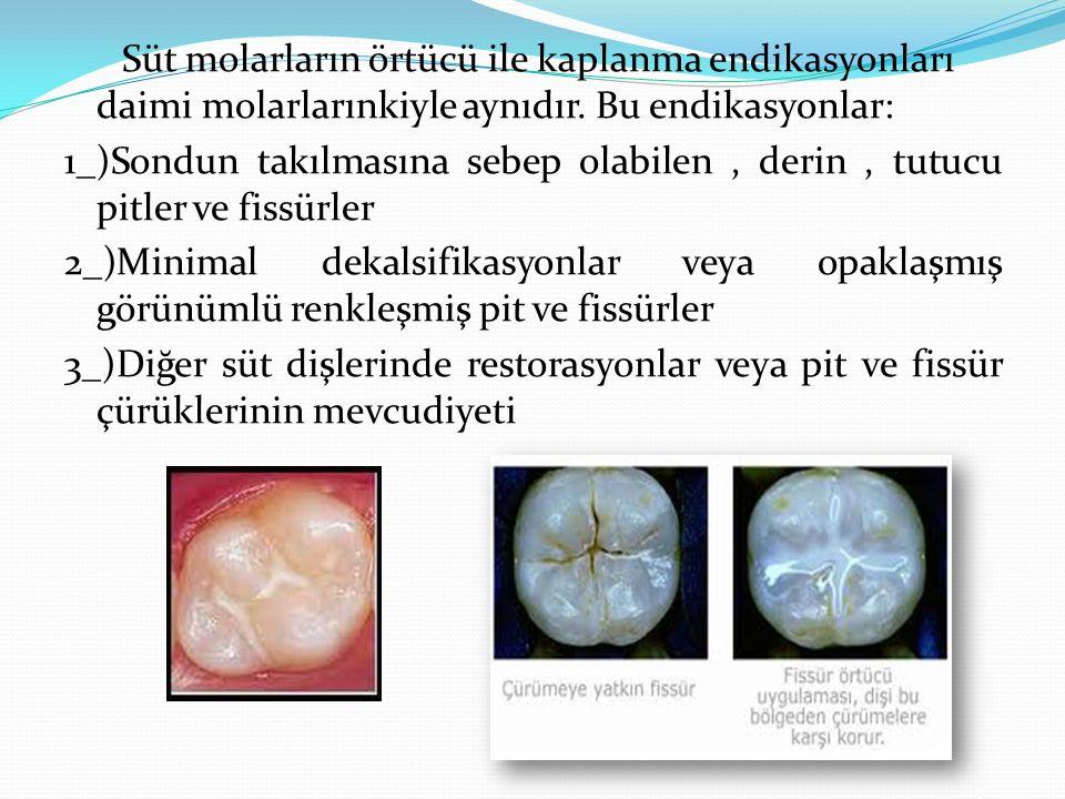 Süt molarların örtücü ile kaplanma endikasyonları daimi molarlarınkiyle aynıdır. Bu endikasyonlar: 1_)Sondun takılmasına sebep olabilen, derin, tutucu