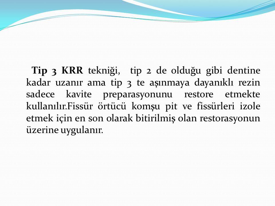 Tip 3 KRR tekniği, tip 2 de olduğu gibi dentine kadar uzanır ama tip 3 te aşınmaya dayanıklı rezin sadece kavite preparasyonunu restore etmekte kullan