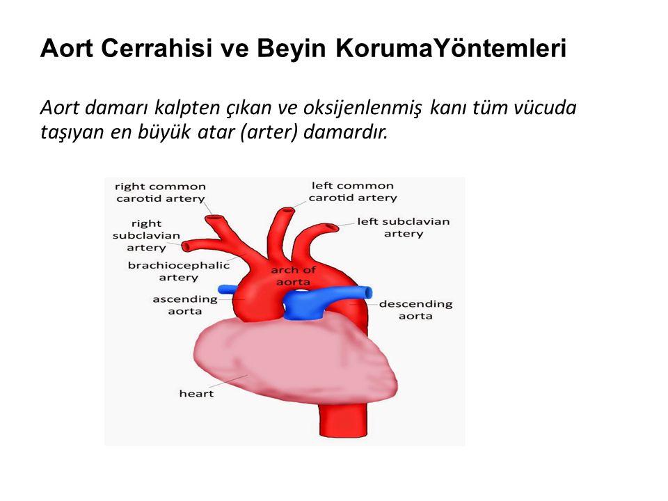 Aort Cerrahisi ve Beyin KorumaYöntemleri Aort damarı kalpten çıkan ve oksijenlenmiş kanı tüm vücuda taşıyan en büyük atar (arter) damardır.